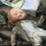 Bani europeni pentru tratarea arsurilor copiilor din România
