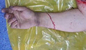 Femeie rănită într-un accident de muncă